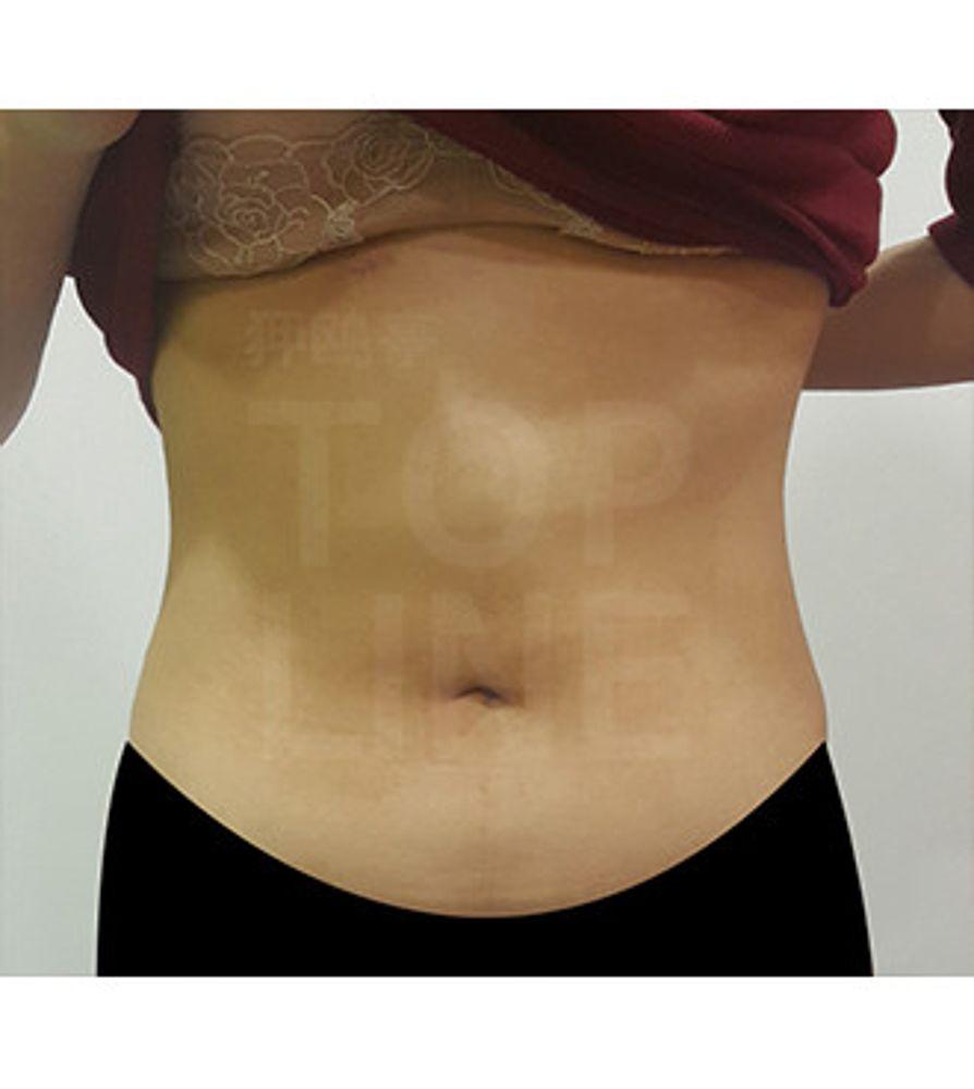 狎鴎亭TOPLINE整形外科の脂肪吸引,脂肪吸収,脂肪吸引(腹)の画像