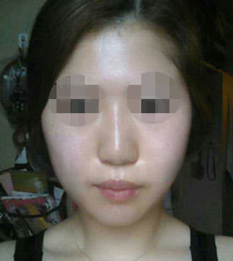 狎鴎亭TOPLINE整形外科の脂肪吸引,脂肪吸引(顔)の画像