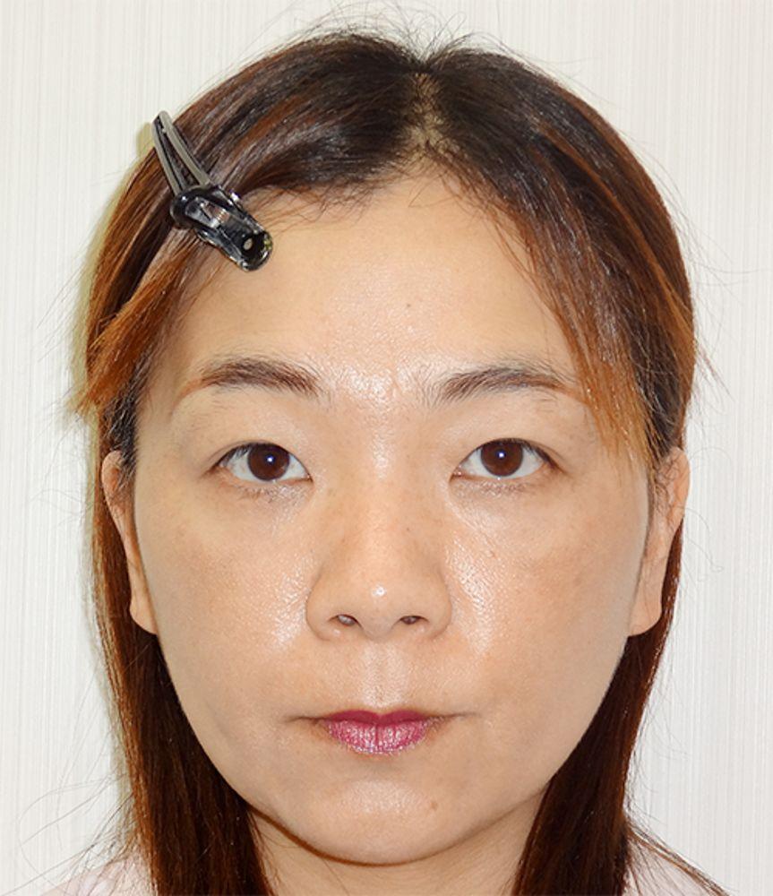 水の森美容外科の全切開法,二重まぶた,目頭切開,目を大きくの画像