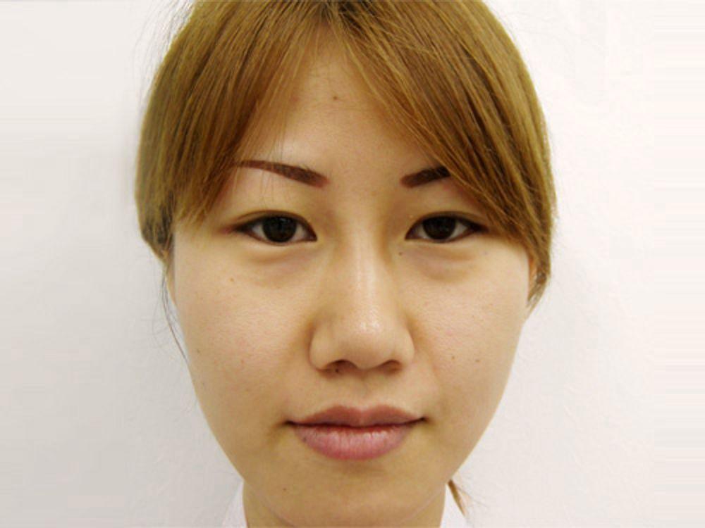 水の森美容外科の全切開法,二重まぶた,鼻先を細く,鼻尖形成耳介軟骨,鼻尖縮小術,鼻を小さくの画像