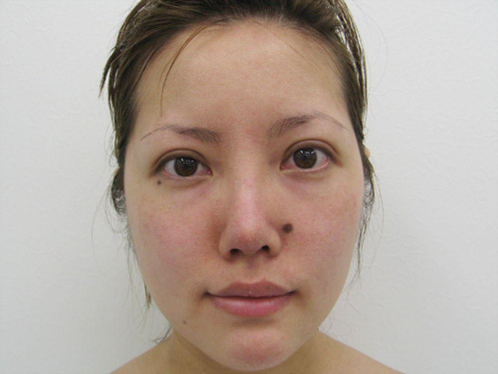 水の森美容外科の全切開法,二重まぶた,アゴ,顎プロテーゼの画像