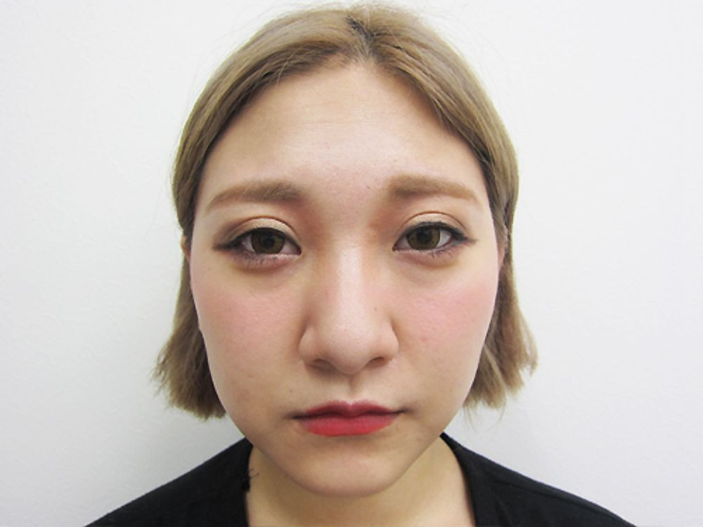 水の森美容外科の鼻先を細く,鼻尖形成耳介軟骨,鼻尖縮小術,鼻を小さく,鼻骨幅寄せ,鼻の骨の画像