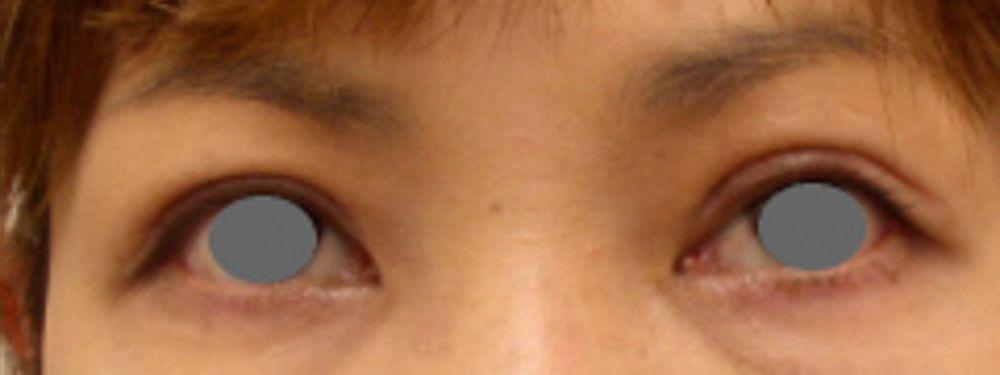 有楽町高野美容クリニックのたるみ・クマ取り,上眼瞼切開(上瞼たるみ取り)の画像