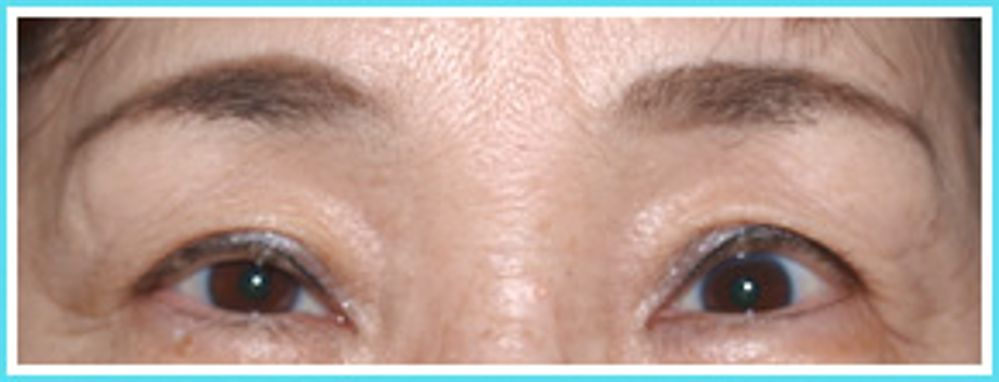 みやび形成外科の眼瞼下垂,眼瞼下垂(挙筋前転法)