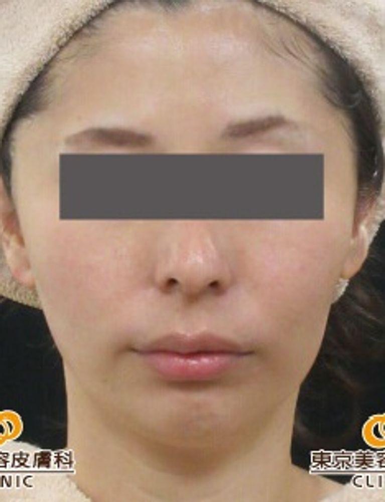 東京美容皮膚科クリニックのアンチエイジング,たるみ,サーマクールの画像