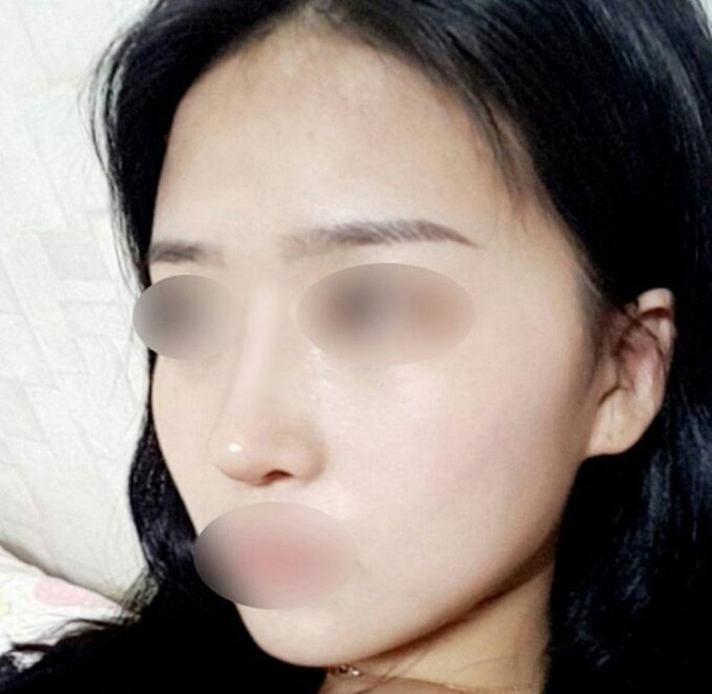 ソウルリスタ美容外科の鼻尖縮小術,鼻を小さく,隆鼻(鼻を高く),鼻中隔の画像