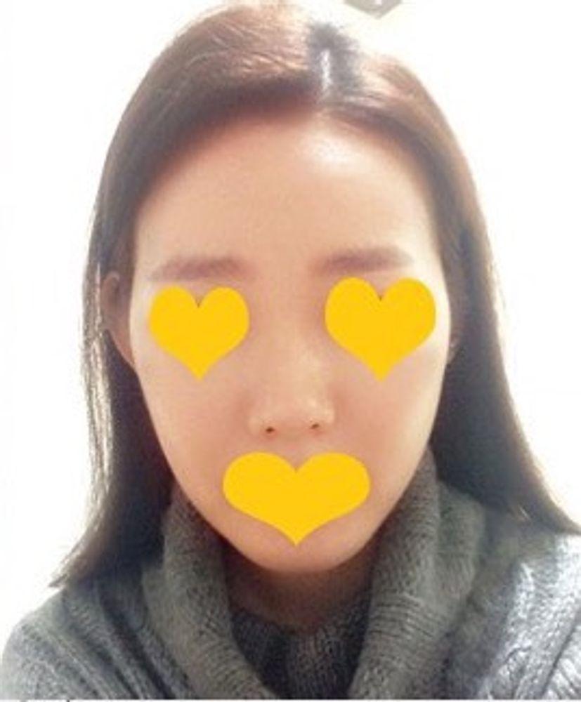 iLUMI美容外科の頬骨,アゴ,エラ,輪郭の画像
