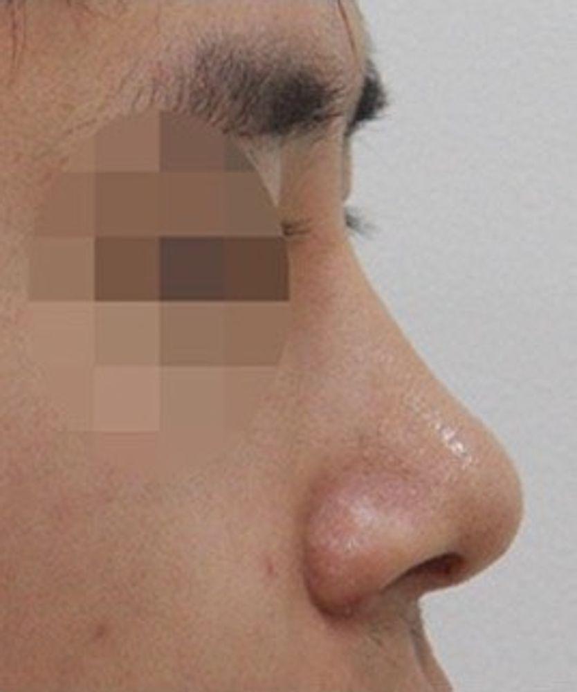 iLUMI(アイルミ)美容外科の鼻,鼻尖縮小術,鼻中隔,鼻中隔軟骨,鼻骨幅寄せ,隆鼻(鼻を高く),隆鼻ゴアテックス,鼻の骨,ハンプ鼻(わし鼻)修正,隆鼻プロテーゼ,鼻の付け根,鼻翼縮小手術,鼻を小さく,鼻孔縁延長術,鼻先を細く,鼻尖形成肋軟骨,隆鼻ヒアルロン酸注入,鼻の穴,鼻尖形成耳介軟骨,鼻中隔延長耳介軟骨,鼻中隔延長肋軟骨,鼻翼基部プロテーゼ(貴族手術),軟骨(鼻翼基部),隆鼻耳介軟骨,隆鼻鼻中隔軟骨,隆鼻レディエッセ注入,隆鼻肋軟骨,隆鼻軟骨細片,隆鼻筋膜移植,隆鼻真皮移植,隆鼻脂肪移植,鼻尖縮小術・糸,鼻尖形成プロテーゼ,鼻尖形成脂肪移植,鼻尖形成真皮移植,鼻尖形成筋膜移植,鼻孔縁挙上術,鼻の柱,鼻柱下降術,鼻柱拳上術,垂れ鼻修正,斜鼻修正,鼻中隔延長ベストリノプラスティー(糸),シリコン(鼻翼基部),脂肪注入(鼻翼基部),ヒアルロン酸(鼻翼基部),鼻の修正の画像