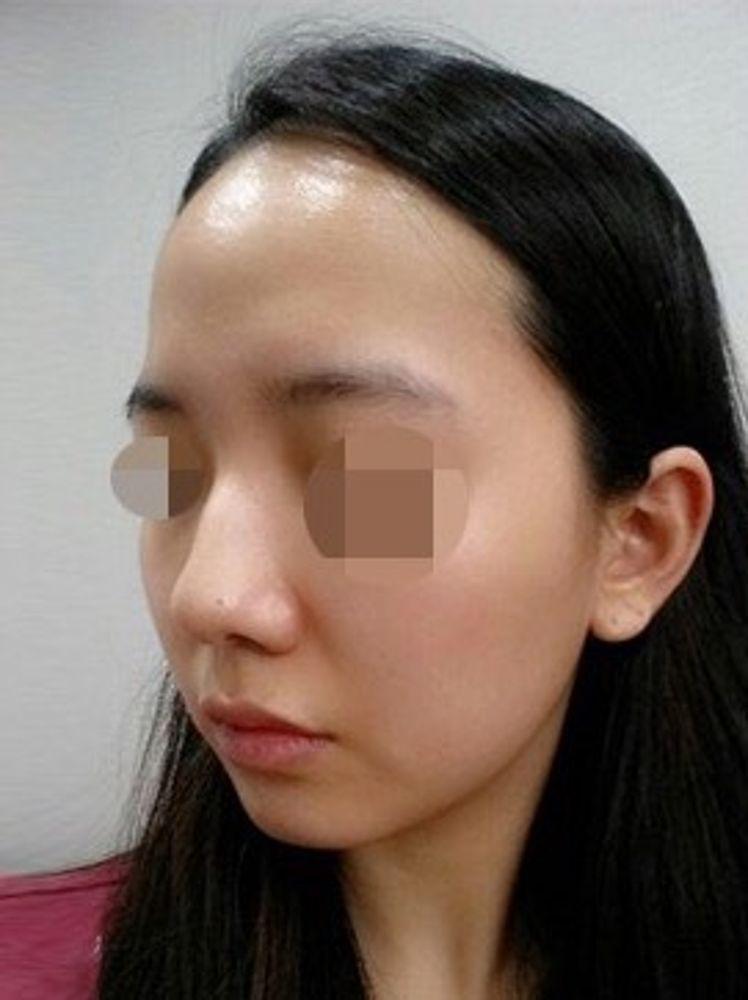 iLUMI美容外科の鼻,鼻尖縮小術,鼻中隔,鼻中隔軟骨,鼻骨幅寄せ,隆鼻(鼻を高く),隆鼻ゴアテックス,鼻の骨,ハンプ鼻(わし鼻)修正,隆鼻プロテーゼ,鼻の付け根,鼻翼縮小手術,鼻を小さく,鼻孔縁延長術,鼻先を細く,鼻尖形成肋軟骨,隆鼻ヒアルロン酸注入,鼻の穴,鼻尖形成耳介軟骨,鼻中隔延長耳介軟骨,鼻中隔延長肋軟骨,鼻翼基部プロテーゼ(貴族手術),軟骨(鼻翼基部),隆鼻耳介軟骨,隆鼻鼻中隔軟骨,隆鼻レディエッセ注入,隆鼻肋軟骨,隆鼻軟骨細片,隆鼻筋膜移植,隆鼻真皮移植,隆鼻脂肪移植,鼻尖縮小術・糸,鼻尖形成プロテーゼ,鼻尖形成脂肪移植,鼻尖形成真皮移植,鼻尖形成筋膜移植,鼻孔縁挙上術,鼻の柱,鼻柱下降術,鼻柱拳上術,垂れ鼻修正,斜鼻修正,鼻中隔延長ベストリノプラスティー(糸),シリコン(鼻翼基部),脂肪注入(鼻翼基部),ヒアルロン酸(鼻翼基部),鼻の修正の画像