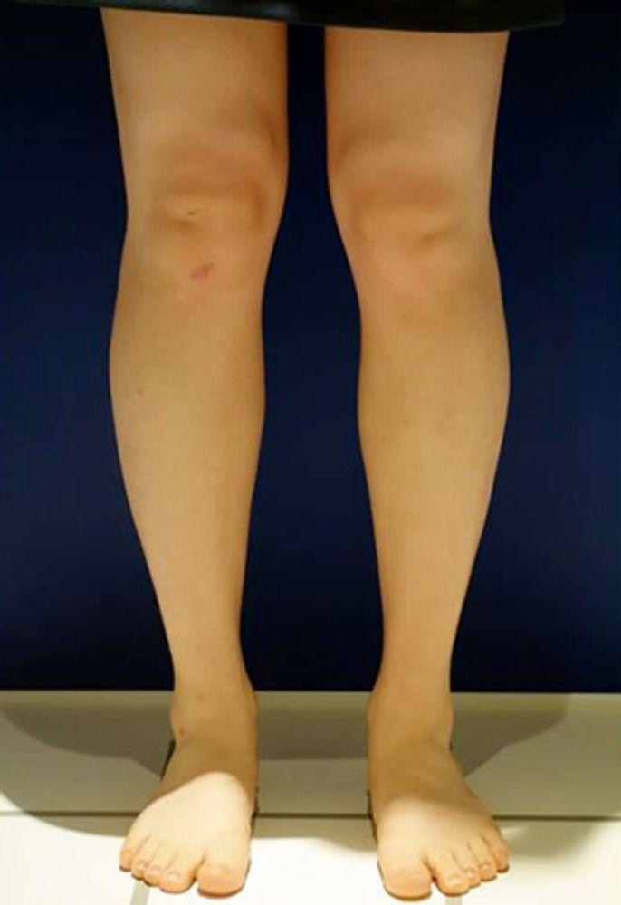 ハピス美容外科のボトックス,ふくらはぎボトックスの画像