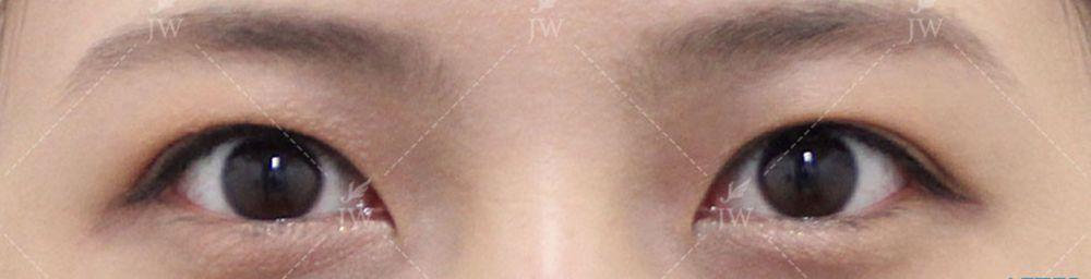 ジョンウォン整形外科の眼瞼下垂,二重まぶた,部分切開法の画像