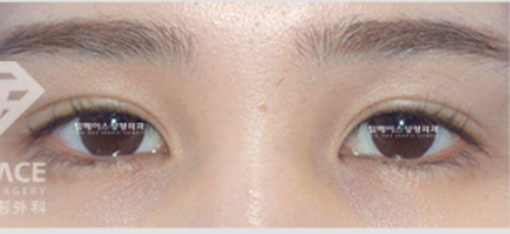 トップフェイス整形外科の二重まぶた,経結膜的埋没法(クイックコスメティーク法),眼瞼下垂,目の修正の画像
