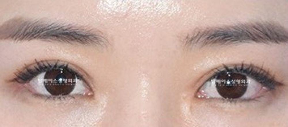 トップフェイス整形外科の眼瞼下垂の画像