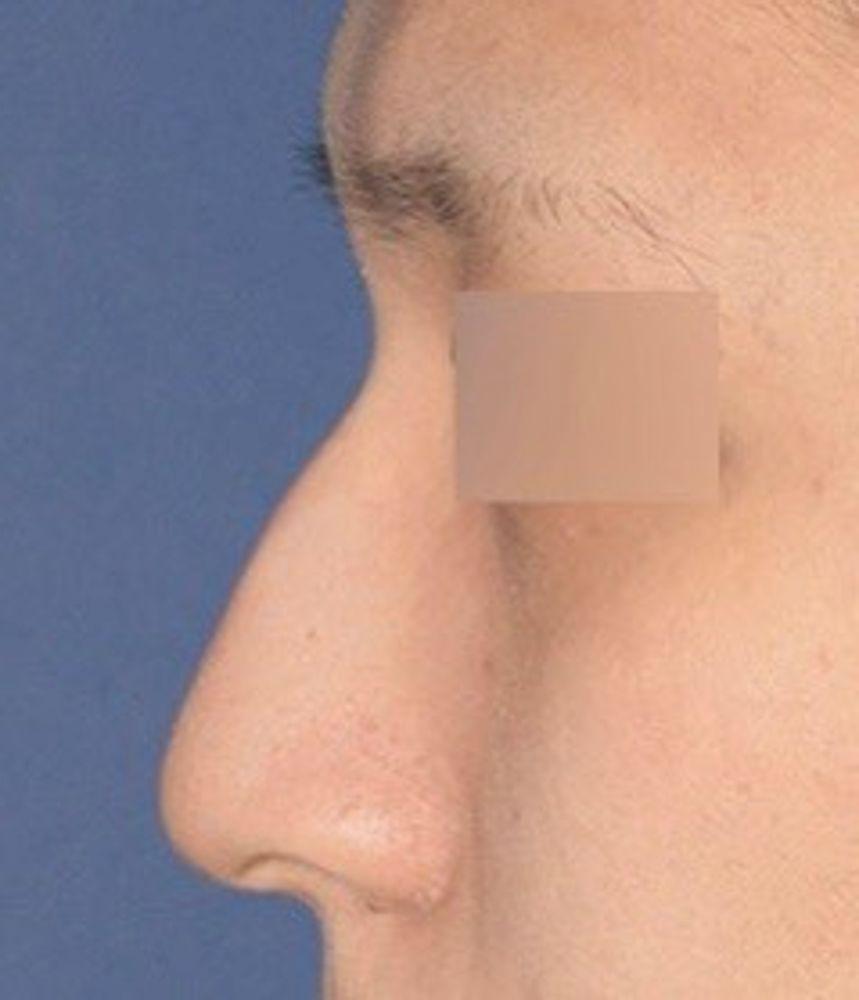 トップフェイス整形外科の鼻の骨,ハンプ鼻(わし鼻)修正,鼻の画像