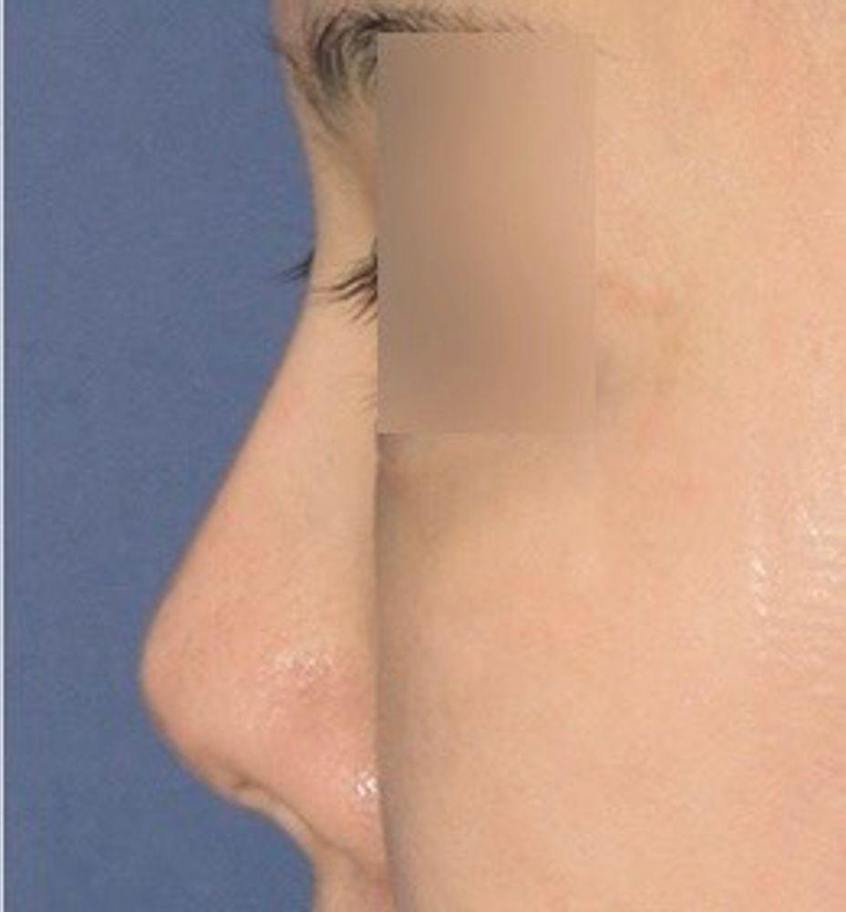 トップフェイス整形外科の鼻中隔,鼻の画像