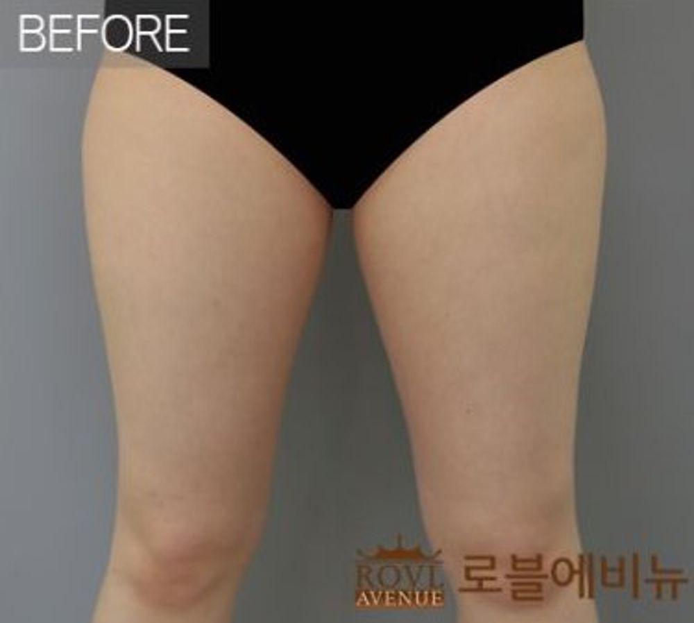 ロブルエビニュー美容外科の脂肪吸引,脂肪吸引(太もも)の画像