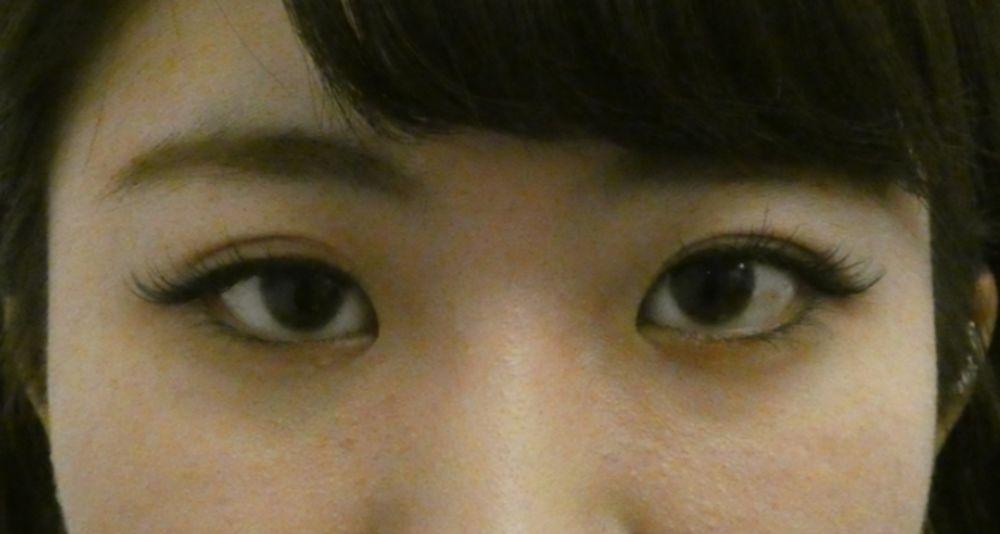 藤ナチュレ美容クリニック恵比寿院の眼瞼下垂,なみだ袋形成の画像