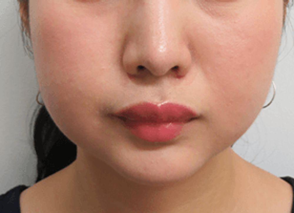 銀座小町クリニックの脂肪溶解注射,脂肪溶解注射(顔),小顔注射,BNLS注射の画像