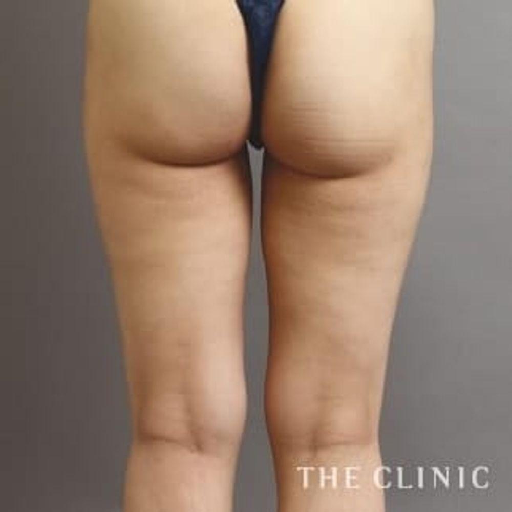 THE CLINICのベイザー脂肪吸引,脂肪吸収,脂肪吸引の術法の画像