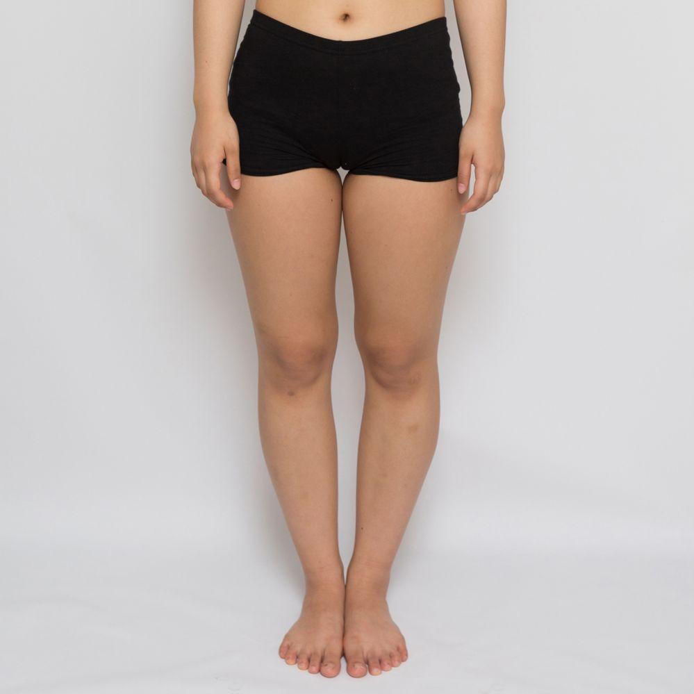 ユマステム美容外科の脂肪吸引,脂肪吸引(太もも)の画像