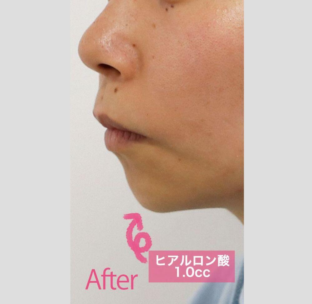 フィラークリニックのアゴ,顎ヒアルロン酸の画像