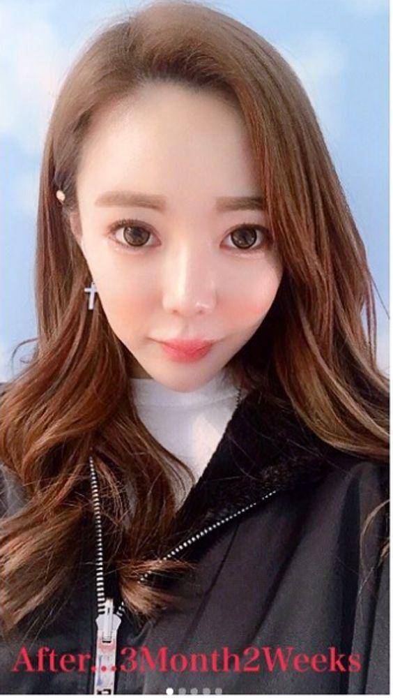 ミナ整形外科の目,目尻切開,目頭切開,目を大きく,唇,鼻,鼻尖縮小術,鼻の骨,ハンプ鼻(わし鼻)修正,鼻を小さく,アンチエイジング,スレッド(糸)リフトの画像