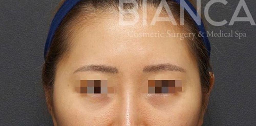 BIANCA CLINIC(ビアンカクリニック)の脂肪注入の画像