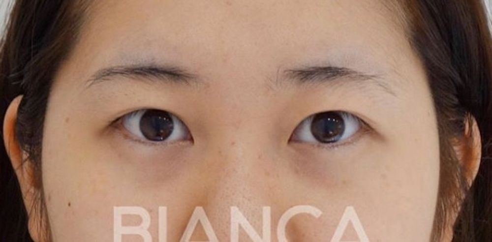 BIANCA CLINIC(ビアンカクリニック)の目,全切開法,二重まぶたの画像