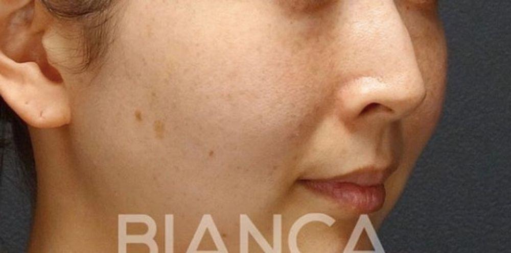 BIANCA CLINIC(ビアンカクリニック)の美白・美肌の画像