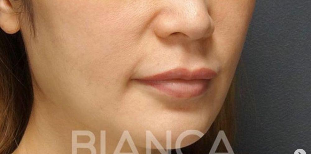 BIANCA CLINIC(ビアンカクリニック)の唇,人中を短く,人中短縮術(リップリフト)の画像