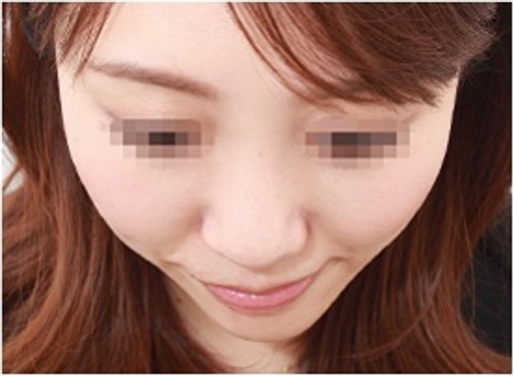 品川美容外科の頬骨,輪郭,頬形成術ヒアルロン酸の画像