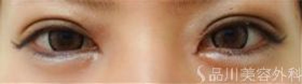 品川美容外科の目頭切開,目を大きくの画像