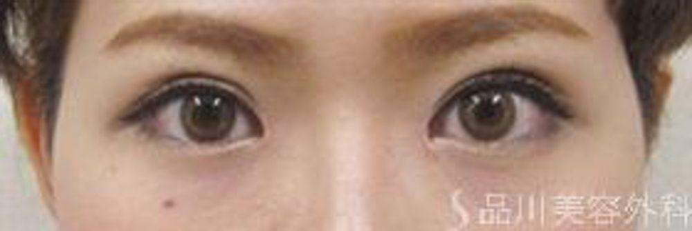 品川美容外科の全切開法,二重まぶたの画像
