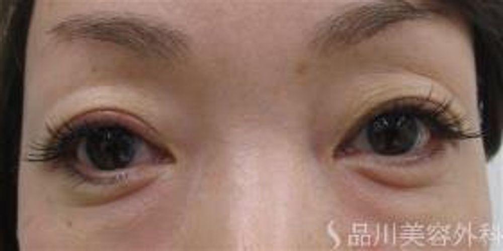 品川美容外科のたるみ・クマ取り,下眼瞼脱脂(経結膜脱脂),下眼瞼切開(下瞼たるみ取り)の画像