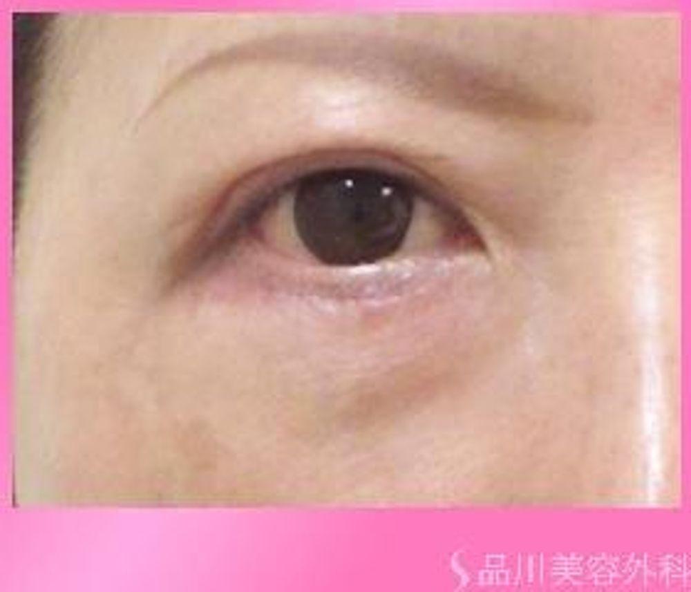 品川美容外科のたるみ・クマ取り,下眼瞼切開(下瞼たるみ取り)の画像