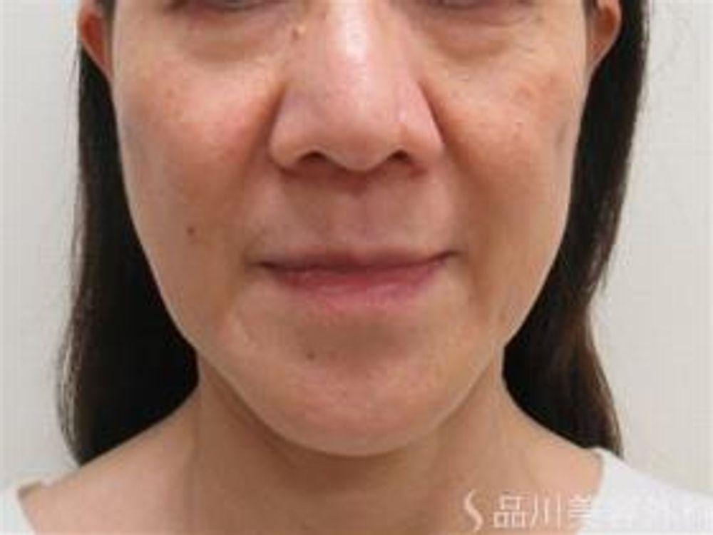 品川美容外科のスレッド(糸)リフト,アンチエイジング,たるみの画像