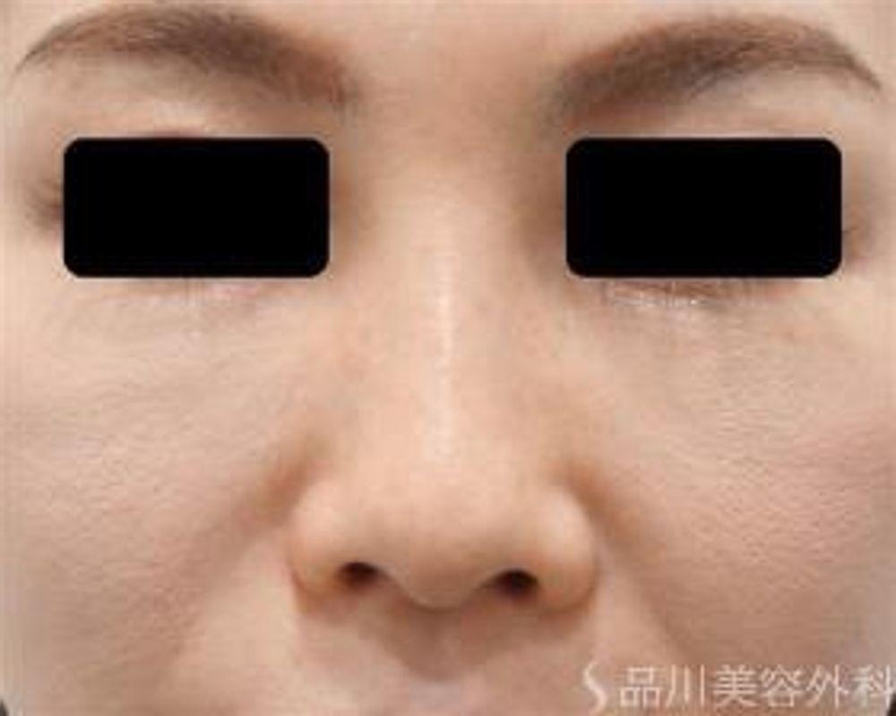 品川美容外科の隆鼻(鼻を高く),隆鼻プロテーゼの画像