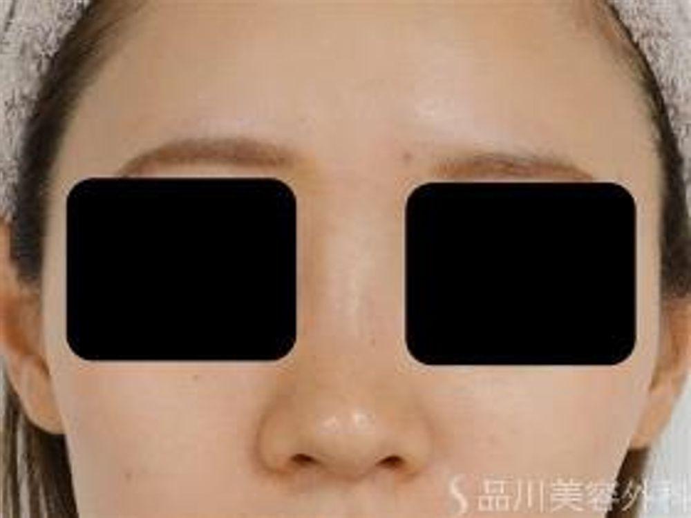 品川美容外科の隆鼻(鼻を高く),隆鼻ヒアルロン酸注入の画像