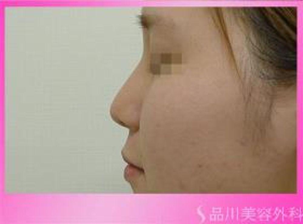 品川美容外科の隆鼻(鼻を高く)の画像