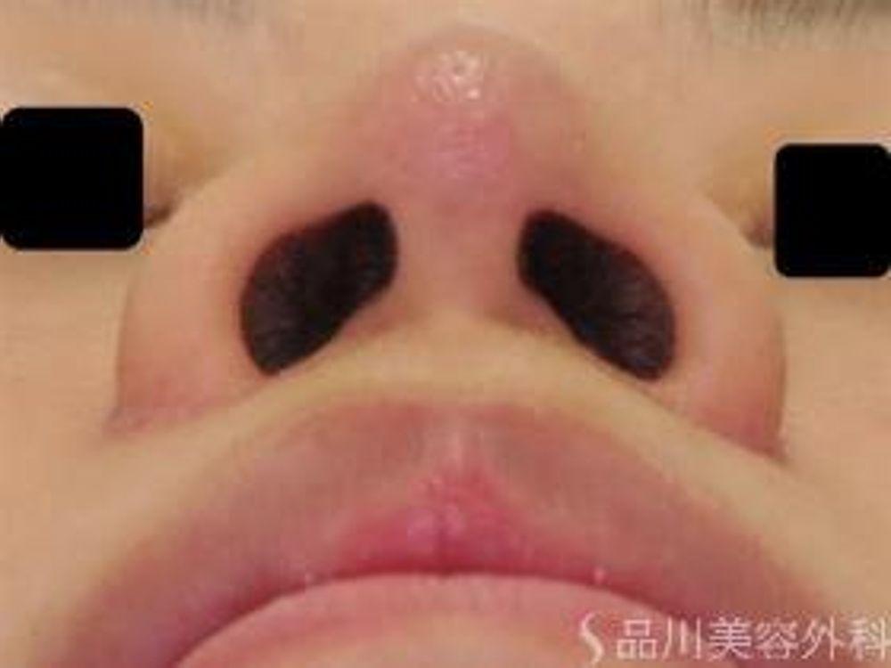 品川美容外科の鼻先を細くの画像