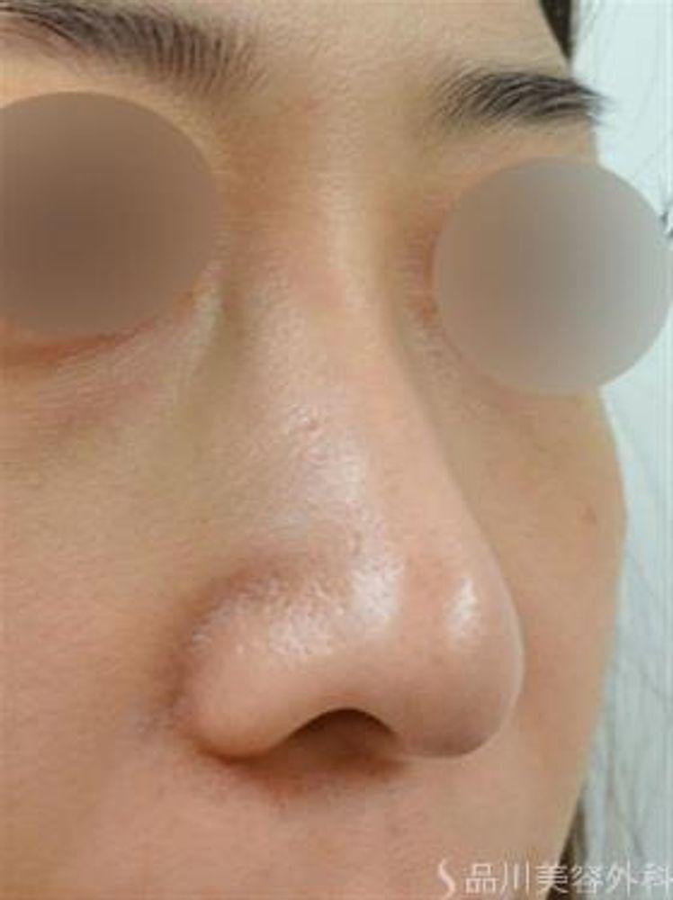 品川美容外科の鼻の骨,ハンプ鼻(わし鼻)修正の画像