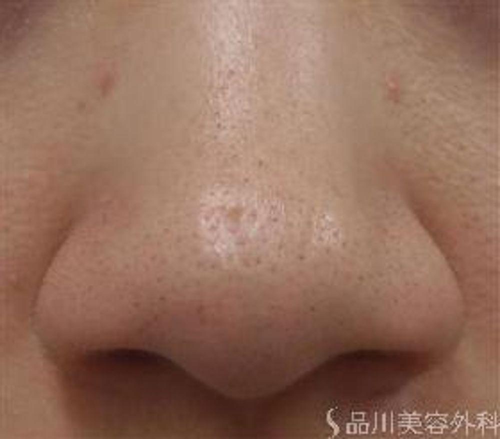 品川美容外科の鼻の付け根,鼻翼縮小手術の画像