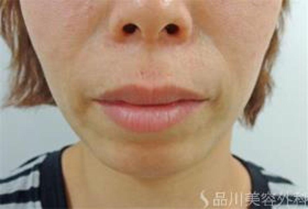 品川美容外科のアゴ,顎プロテーゼの画像