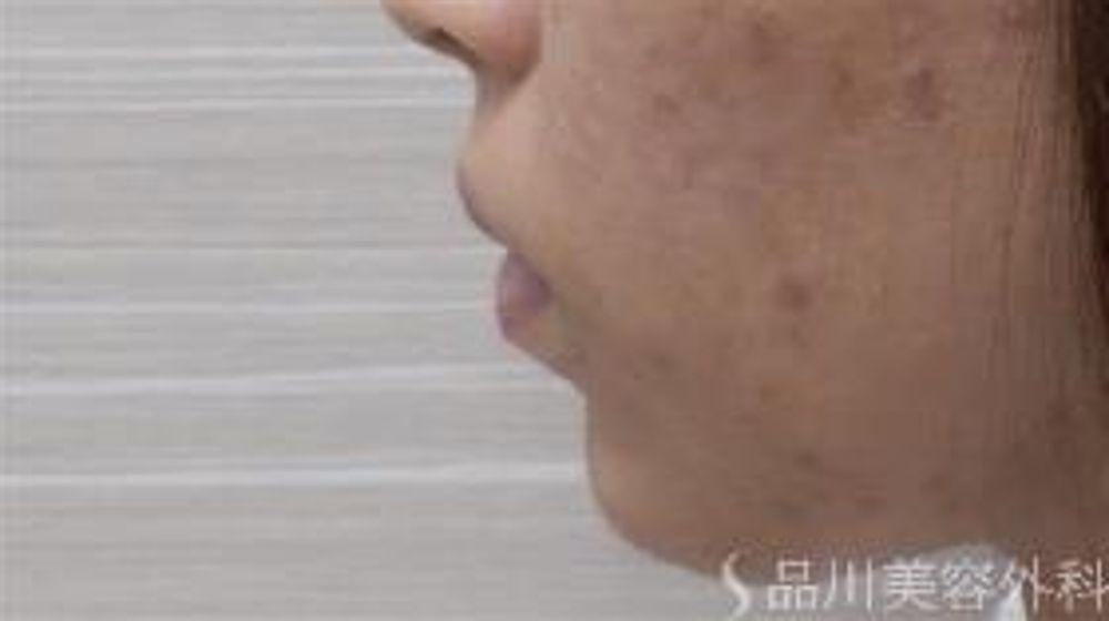 品川美容外科のアゴ,顎ヒアルロン酸の画像