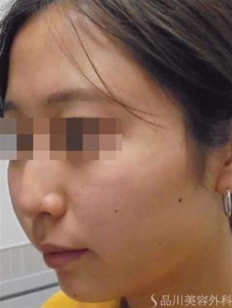 品川美容外科の脂肪吸引,脂肪吸引(顔)の画像