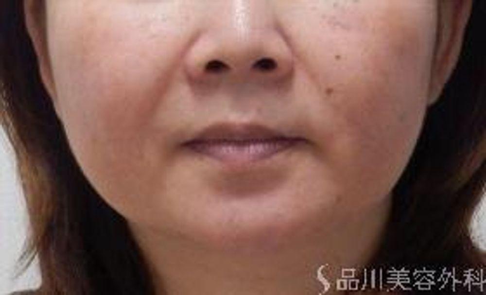 品川美容外科の脂肪吸引,脂肪吸引(顔),脂肪吸引の術法,ボディジェット脂肪吸引の画像