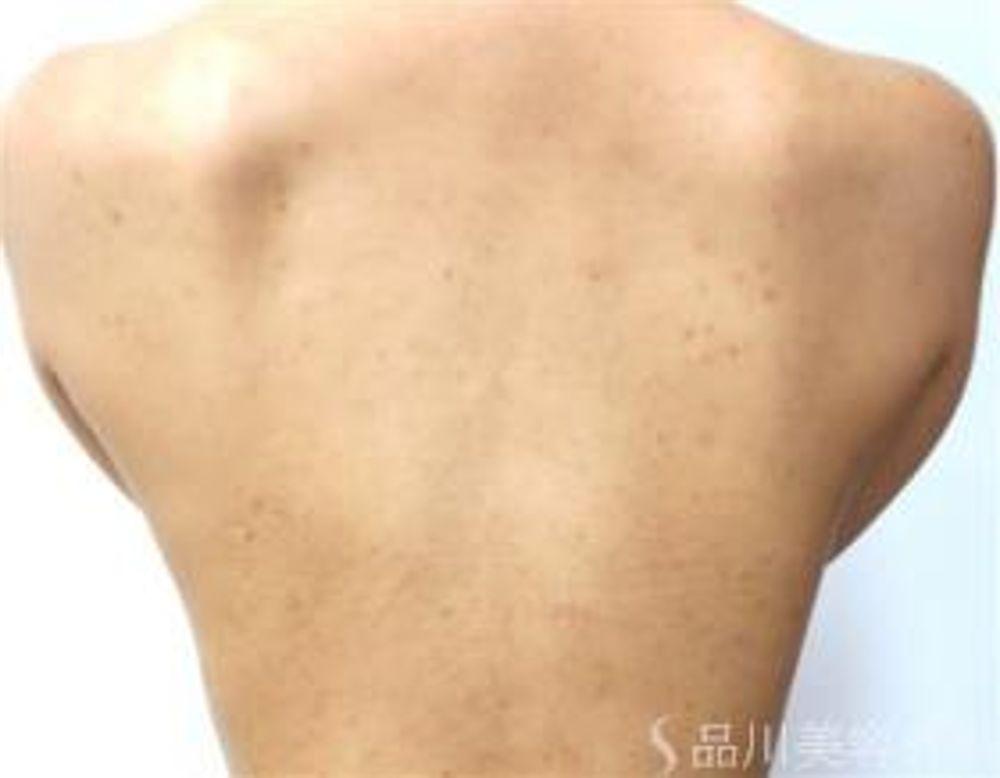 品川美容外科の毛穴,YAGレーザー,レーザートーニング,美白・美肌,しみの画像