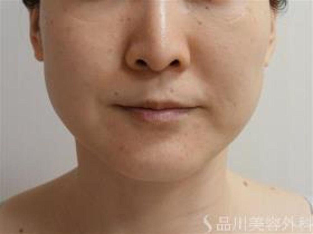 品川美容外科のフェイスリフト,HIFU,たるみの画像
