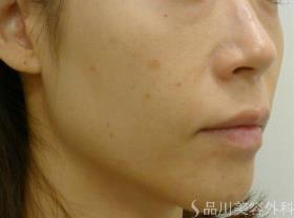 品川美容外科のフォトフェイシャル,フォトRF,美白・美肌の画像