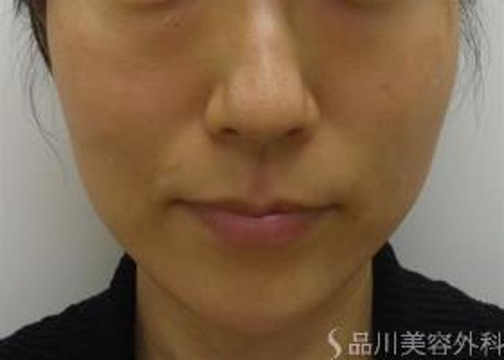 品川美容外科のたるみ,サーマクールの画像